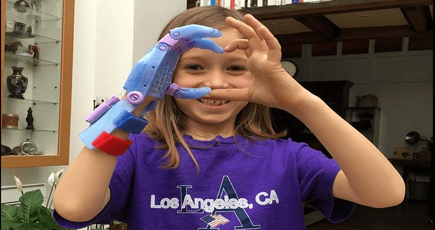 enabling.gr 3D printing δεξί χέρι, συσκευή καρπού | YouBeHero
